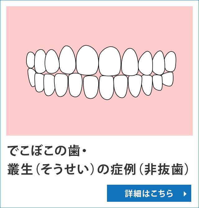 でこぼこの歯・叢生(そうせい)の症例(非抜歯)