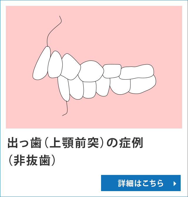 出っ歯(上顎前突)の症例(非抜歯)
