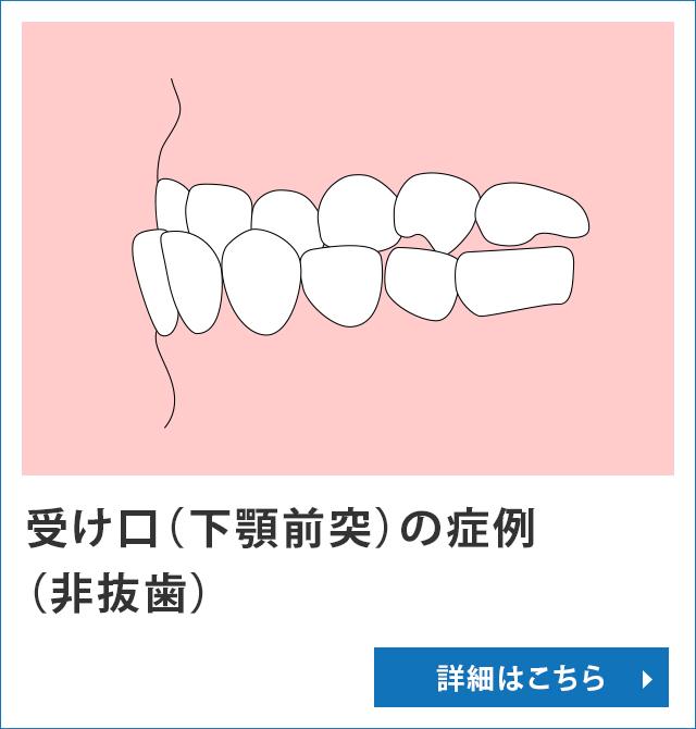 受け口(下顎前突)の症例(非抜歯)