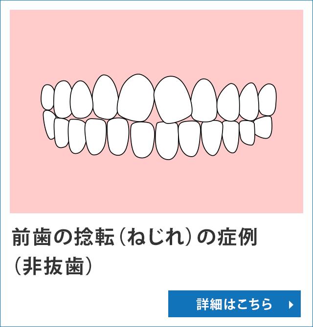 前歯の捻転(ねじれ)の症例(非抜歯)