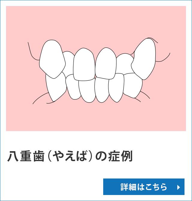 八重歯(やえば)の症例
