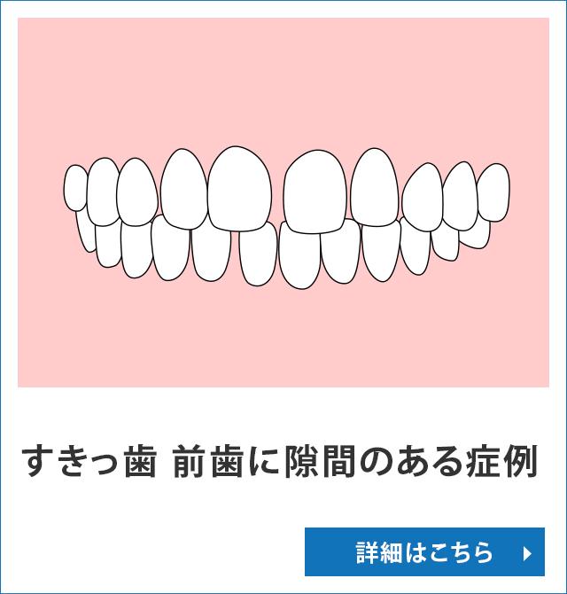 すきっ歯 前歯に隙間のある症例
