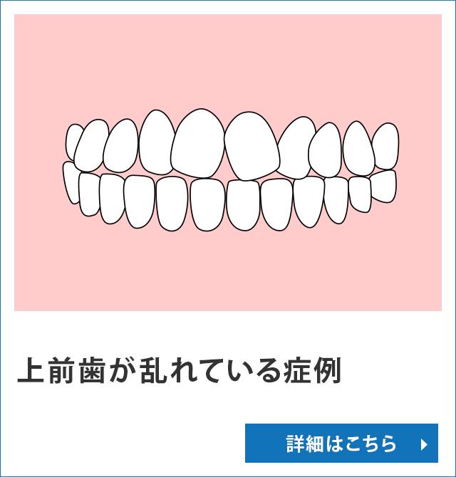 上前歯が乱れている症例