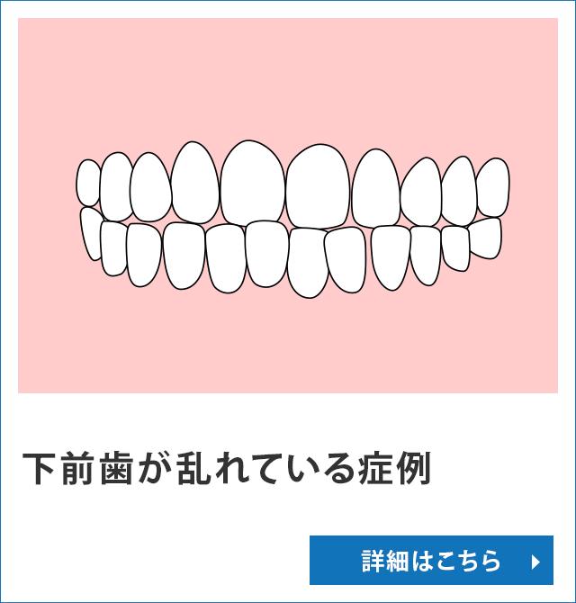 下前歯が乱れている症例