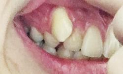 ピース 矯正 八重歯 マウス
